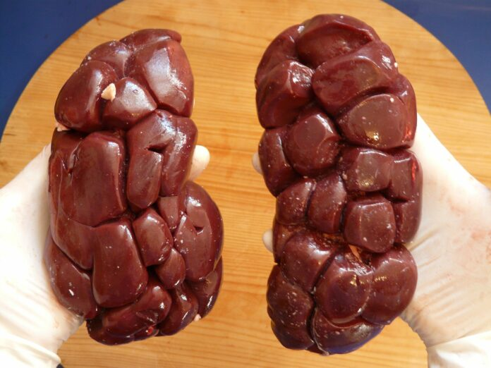 Prevent Kidney Diseases with Healthy Diet and Lifestyle Changes